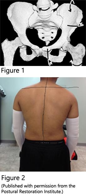 Pelvis-Spine