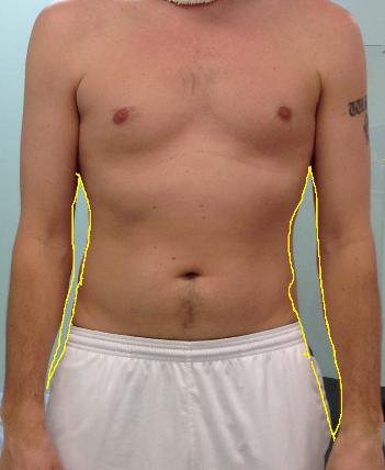 abdomen_3